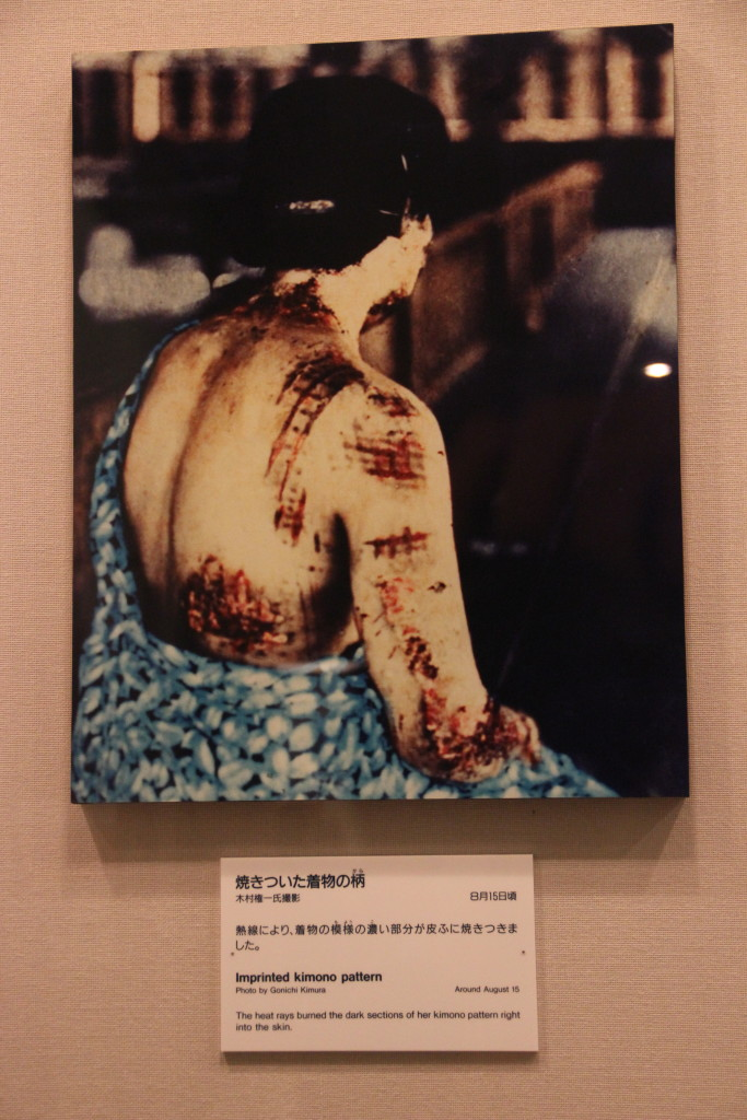 The dark colors of her kimono pattern were imprinted on her skin from the blast.